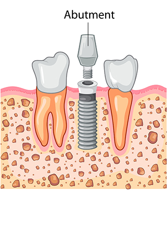 Dental Implant Process - Abutment