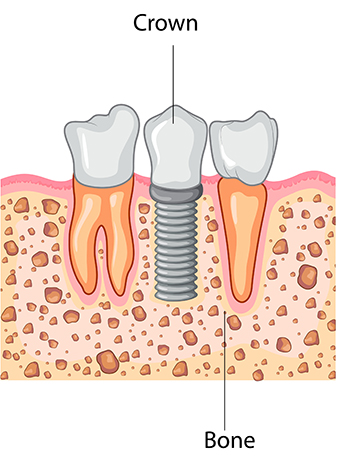 Dental Implant Process - Crown