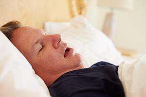 Man with Sleep Apnea Snoring