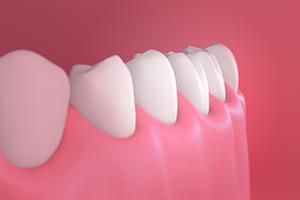 Teeth Gums