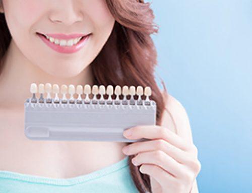Choosing Teeth Whitening