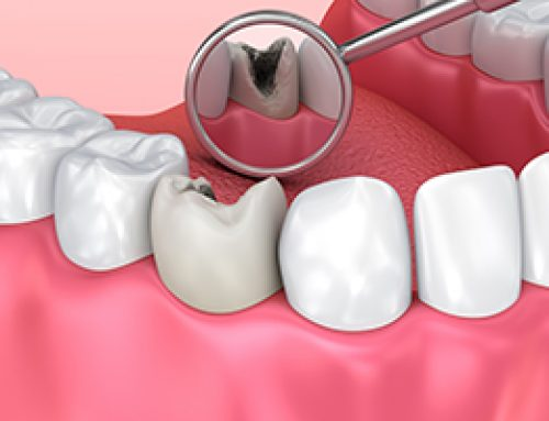 Cavities without Pain?